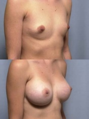 protesi mammarie