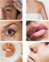 Quello che rafforza la pigmentazione di pelle