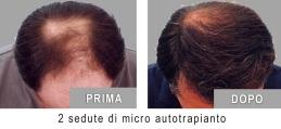REINFOLTIMENTO CAPELLI - Trapianto capelli: rinfoltire dove serve