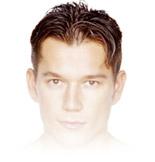 Trapianto capelli: reinfoltimento capelli