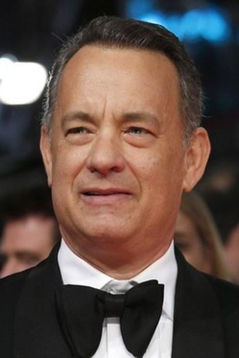 Trapianto capelli Vip Tom Hanks 02