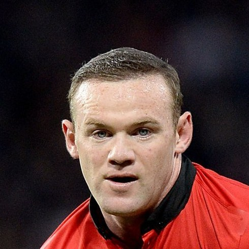 Trapianto capelli Vip Wayne Rooney 02