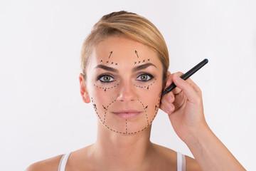 liposuzione al viso